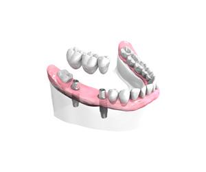 Chirurgien dentiste à Sannois