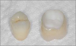 ZIRCONE-couronne-dentaire-sans-metal cabinet dentaire ohayon sannois val d'oise