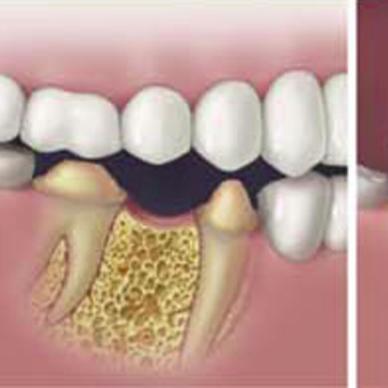 Implant dentaire- DR OHAYON – DENTISTE SANNOIS – VAL D'OISE